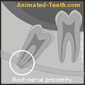 Paresthesia (nerve damage) after wisdom tooth removal or